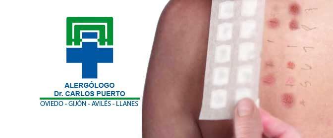 ALERGIA ASTURIAS Patch Test: Diagnóstico y tratamientos de Dr. Carlos Puerto - ALERGÓLOGO